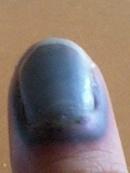だ 内出血 挟ん 腫れ 指
